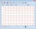 EKG 2000